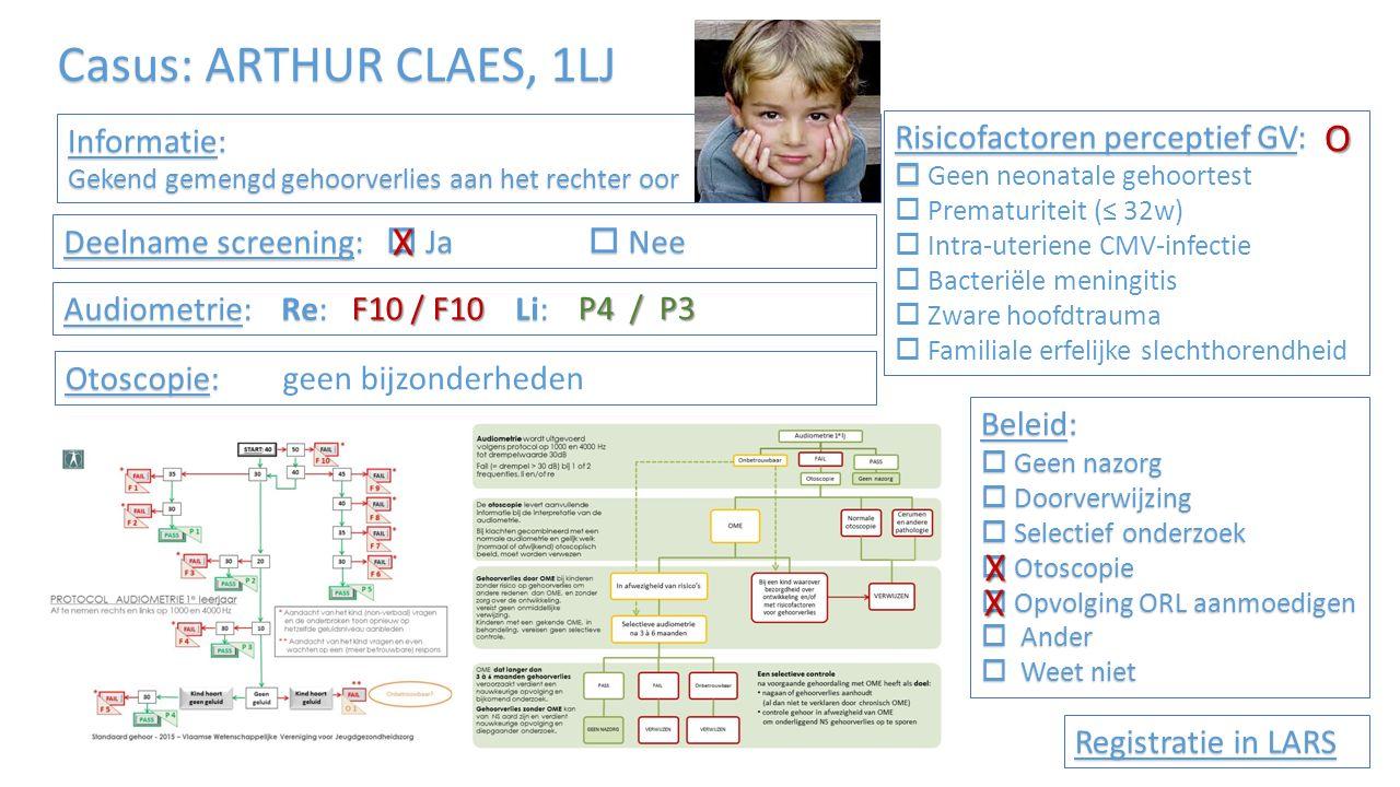 Informatie: Gekend gemengd gehoorverlies aan het rechter oor Risicofactoren perceptief GV:   Geen neonatale gehoortest  Prematuriteit (≤ 32w)  Intra-uteriene CMV-infectie  Bacteriële meningitis  Zware hoofdtrauma  Familiale erfelijke slechthorendheid Audiometrie: Re: Li: Beleid:  Geen nazorg  Doorverwijzing  Selectief onderzoek  Otoscopie  Opvolging ORL aanmoedigen  Ander  Weet niet Registratie in LARS Deelname screening:  Ja  Nee Otoscopie: Otoscopie: geen bijzonderheden Casus: ARTHUR CLAES, 1LJ F10 / F10 P4 / P3 O