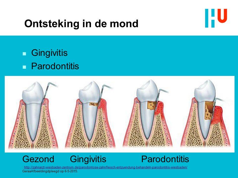 Ontsteking in de mond n Gingivitis n Parodontitis GezondGingivitisParodontitis : http://zahnarzt-wiesbaden-zentrum.de/parodontose-zahnfleisch-entzuend