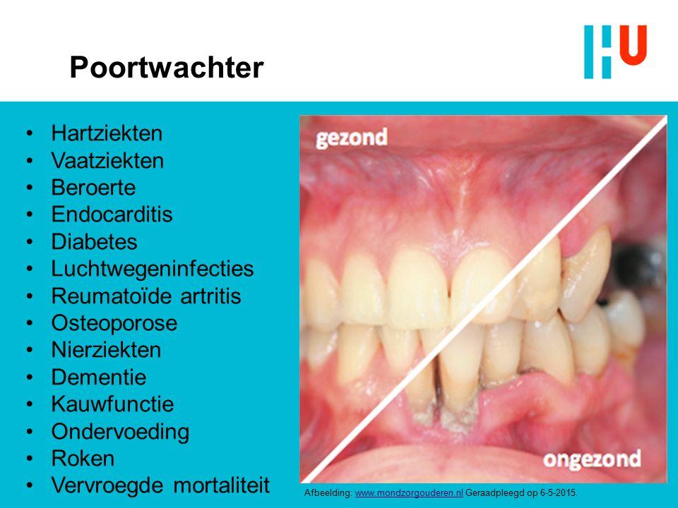 Poortwachter Afbeelding: www.mondzorgouderen.nl Geraadpleegd op 6-5-2015.www.mondzorgouderen.nl Hartziekten Vaatziekten Beroerte Endocarditis Diabetes