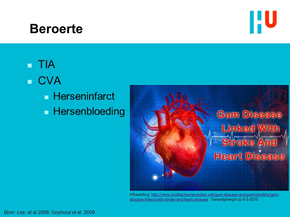 Beroerte n TIA n CVA n Herseninfarct n Hersenbloeding Afbeelding: http://www.toothachesremedies.net/gum-disease-and-periodontitis/gum- disease-linked-with-stroke-and-heart-disease Geraadpleegd op 6-5-2015.http://www.toothachesremedies.net/gum-disease-and-periodontitis/gum- disease-linked-with-stroke-and-heart-disease Bron: Lee, et al.2006; Seymour et al.