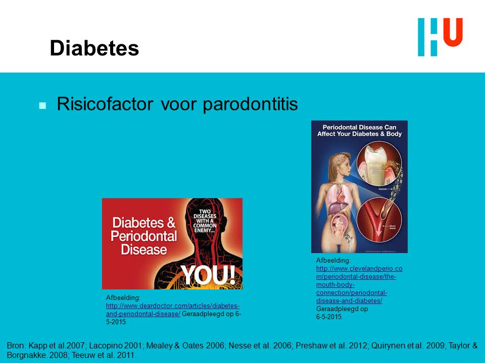 Diabetes n Risicofactor voor parodontitis Afbeelding: http://www.deardoctor.com/articles/diabetes- and-periodontal-disease/ Geraadpleegd op 6- 5-2015.