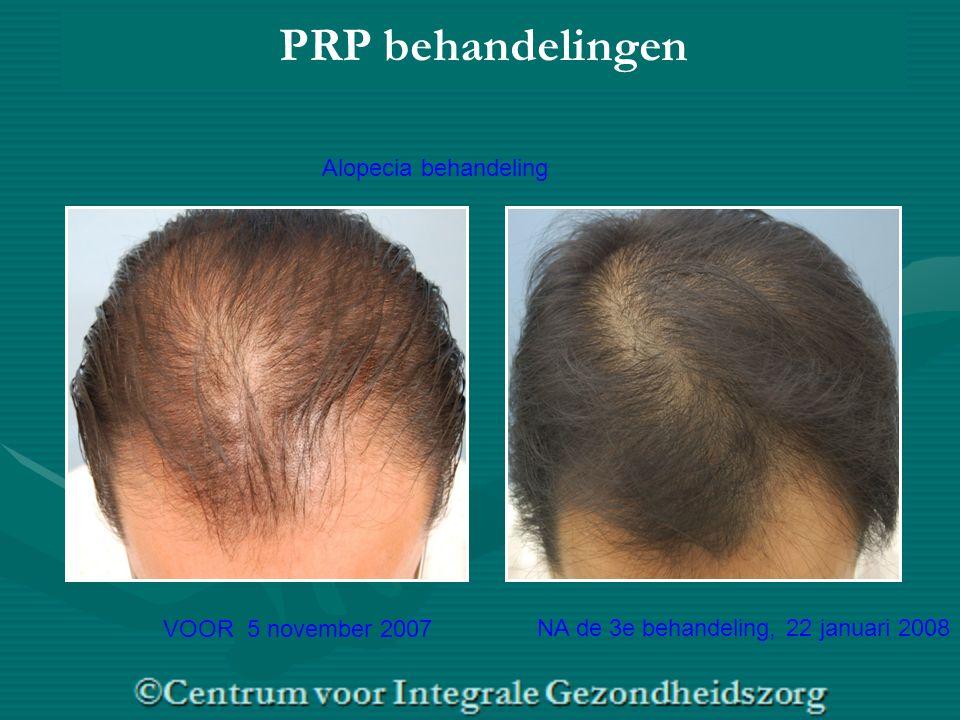 VOOR 5 november 2007 NA de 3e behandeling, 22 januari 2008 PRP behandelingen Alopecia behandeling