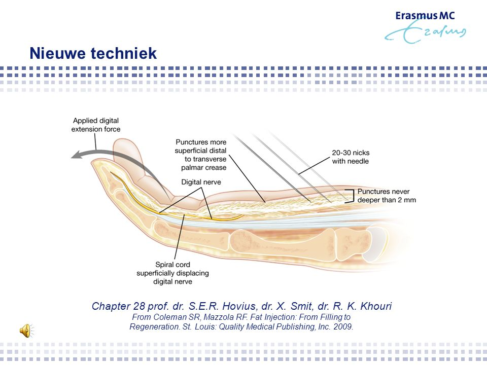 Nieuwe techniek Chapter 28 prof.dr. S.E.R. Hovius, dr.