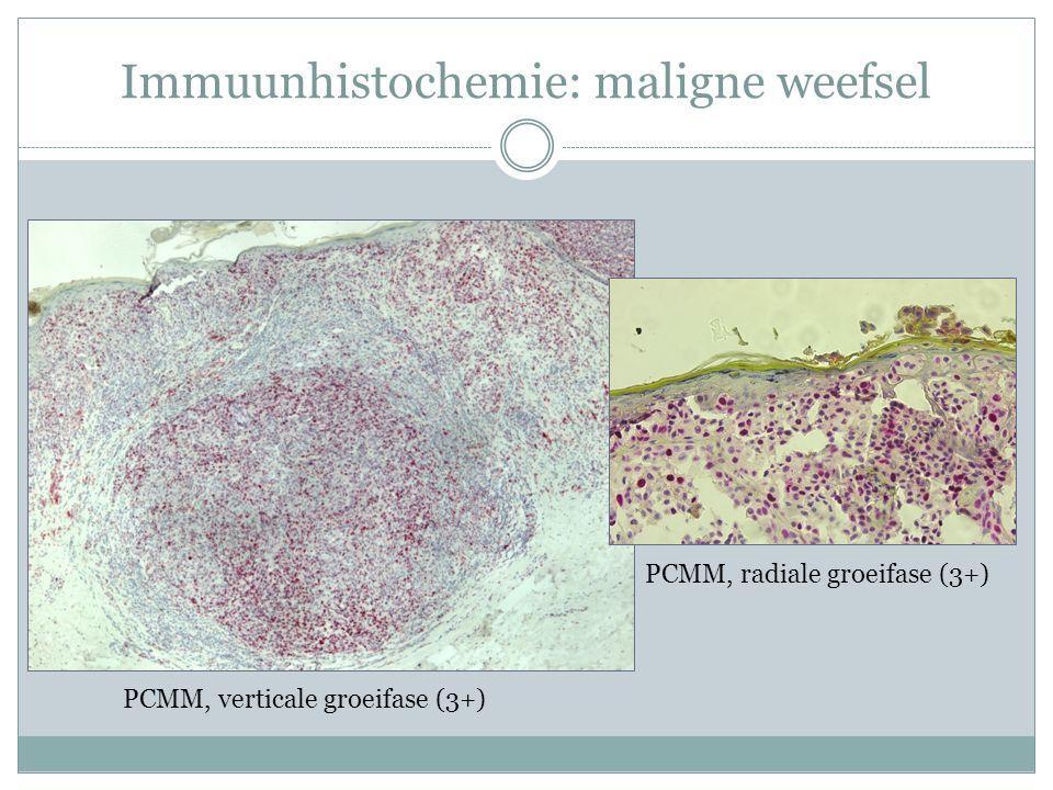 Immuunhistochemie: maligne weefsel PCMM, verticale groeifase (3+) PCMM, radiale groeifase (3+)