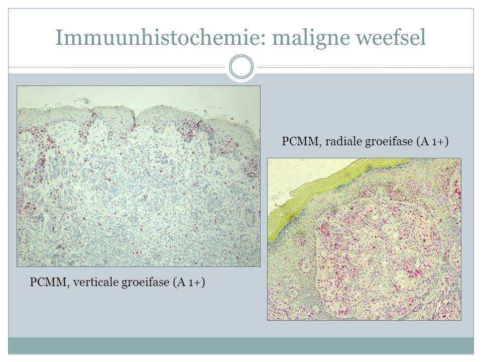 Immuunhistochemie: maligne weefsel PCMM, verticale groeifase (A 1+) PCMM, radiale groeifase (A 1+)