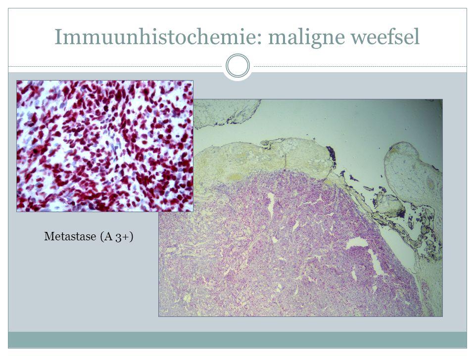 Immuunhistochemie: maligne weefsel Metastase (A 3+)