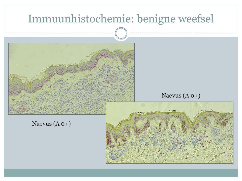 Immuunhistochemie: benigne weefsel Naevus (A 0+)