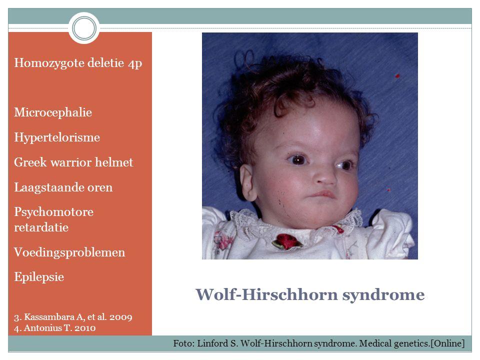 Wolf-Hirschhorn syndrome Homozygote deletie 4p Microcephalie Hypertelorisme Greek warrior helmet Laagstaande oren Psychomotore retardatie Voedingsprob