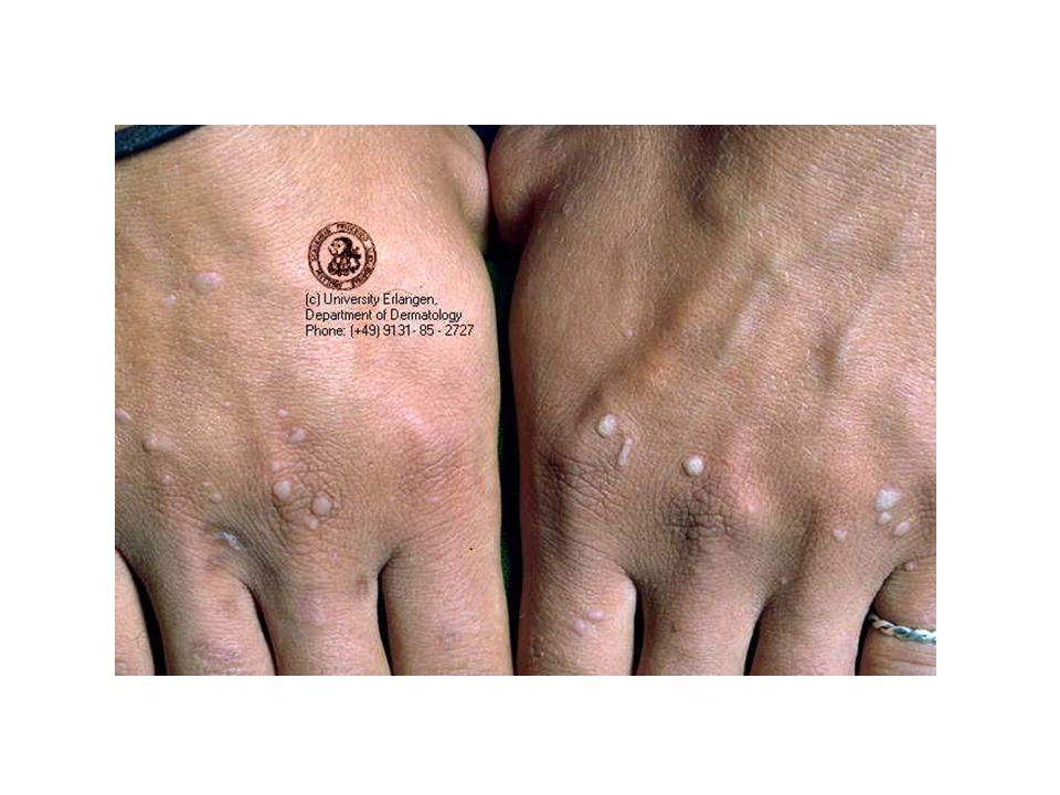 Carcinoma basocellulare (2) Meest frequente maligne huidtumor Trage infiltratie Metastaseert uiterst zelden Niet op slijmvliezen/handpalmen/voetzolen Cryotherapie, radiotherapie en excisie