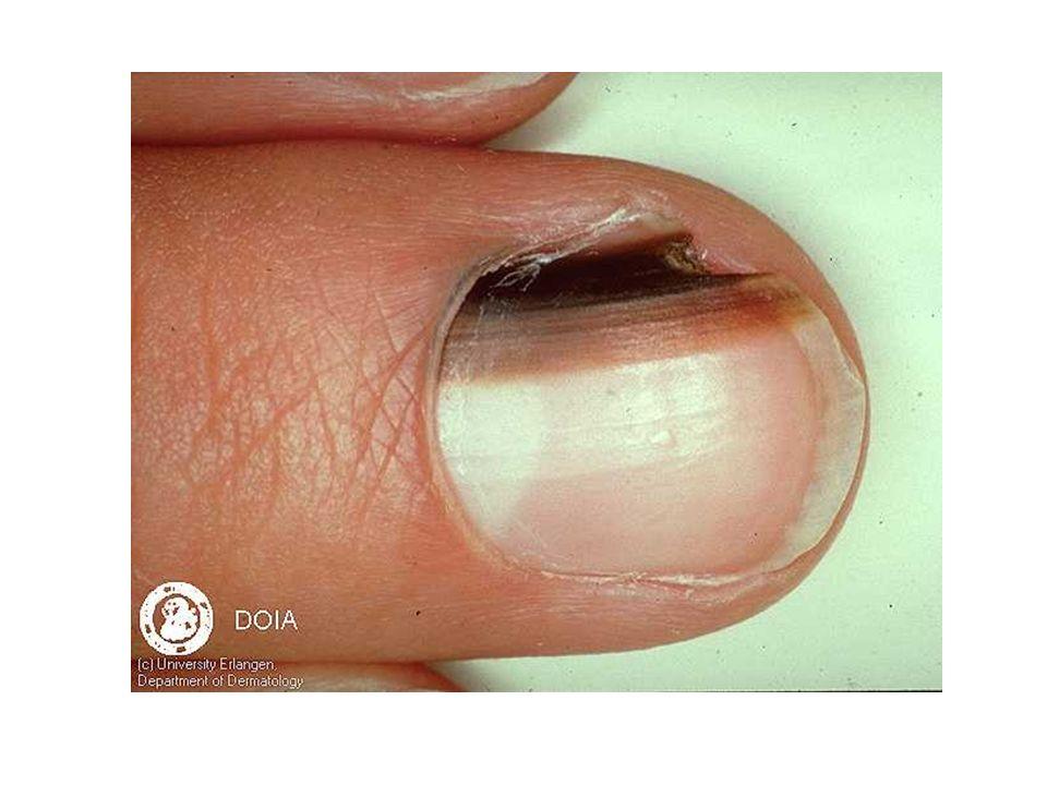 Maligne melanoom (1) Incidentie NL 1000 per jaar 5% familiair Etiologie onzeker Preëxistentie nevi ?%