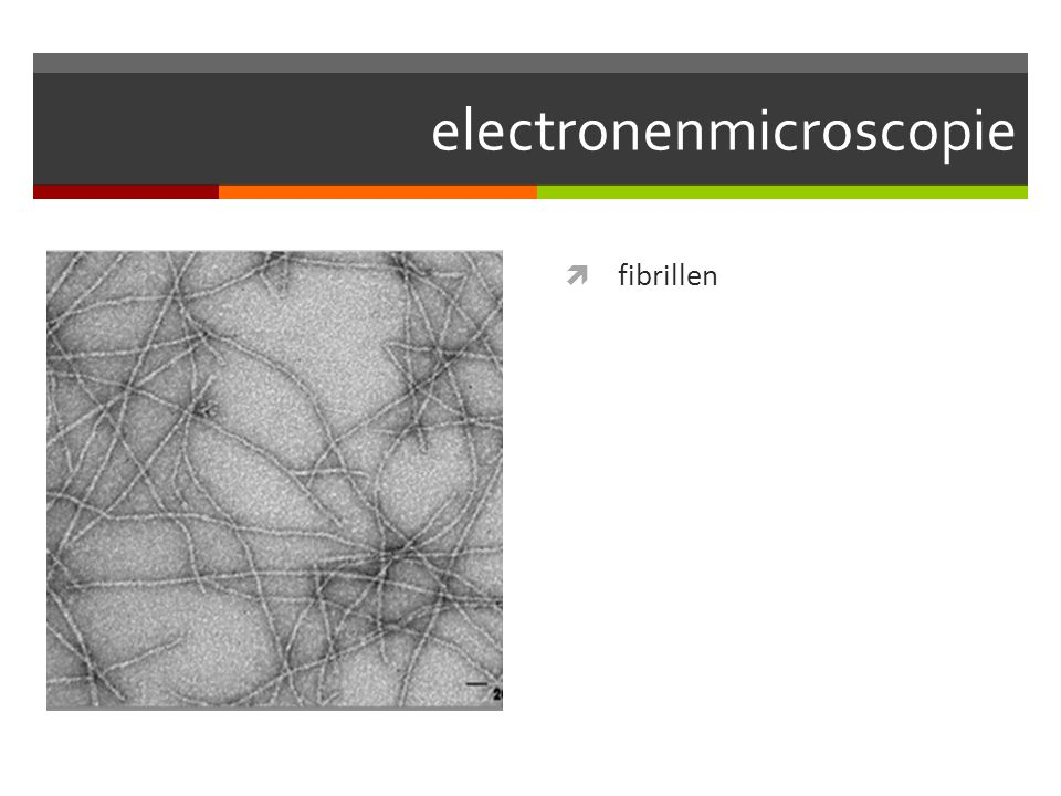 electronenmicroscopie  fibrillen