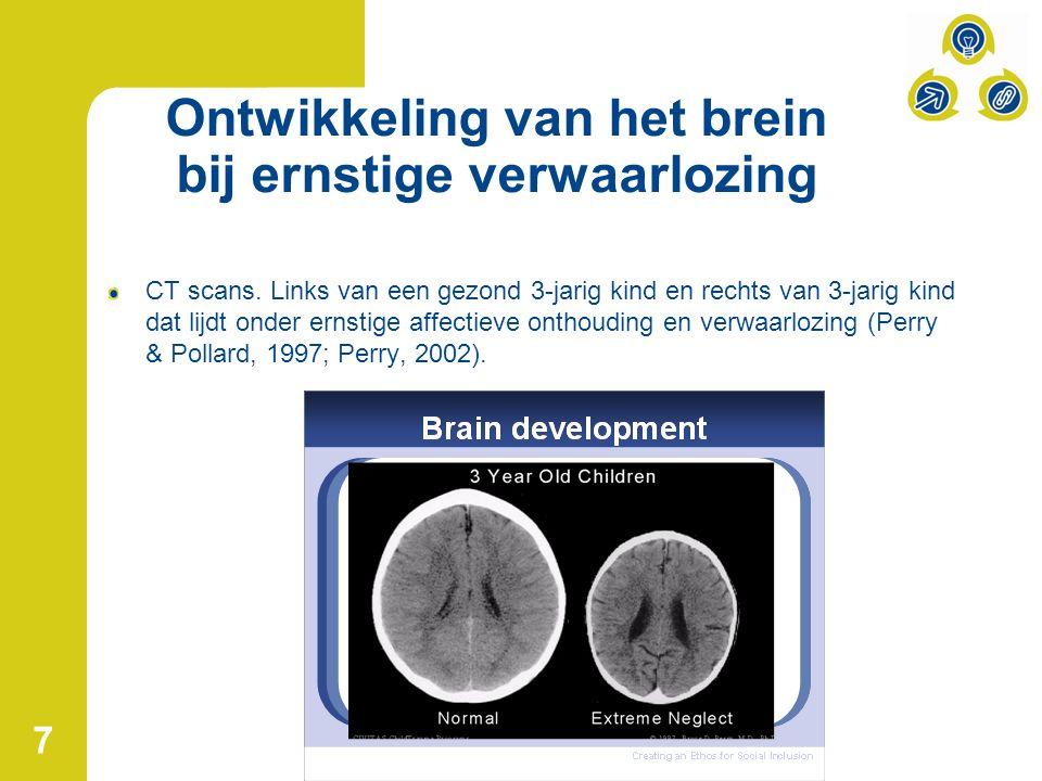 Ontwikkeling van het brein bij ernstige verwaarlozing CT scans.