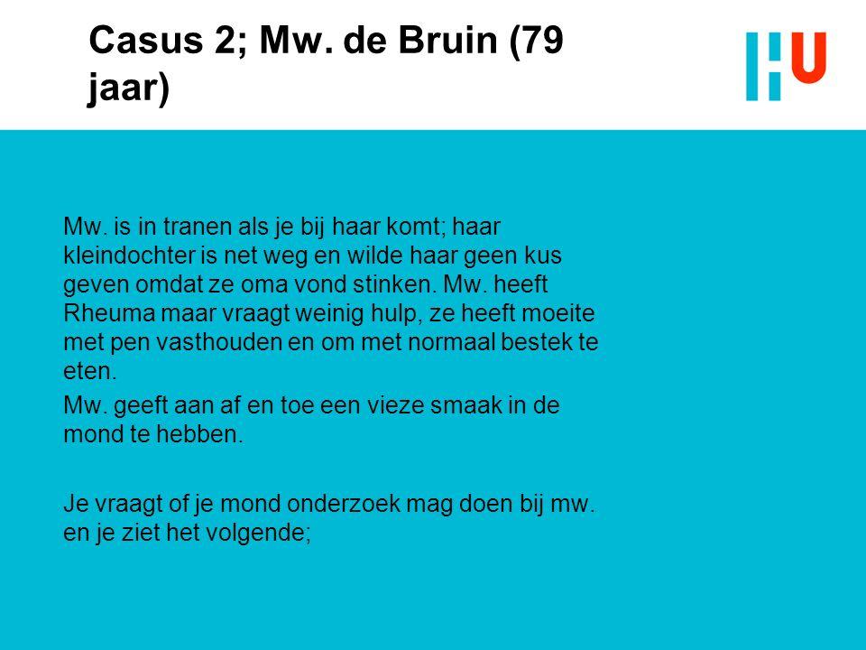 Casus 2; Mw. de Bruin (79 jaar) Mw.