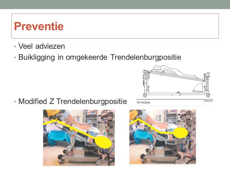 Preventie Veel adviezen Buikligging in omgekeerde Trendelenburgpositie Modified Z Trendelenburgpositie
