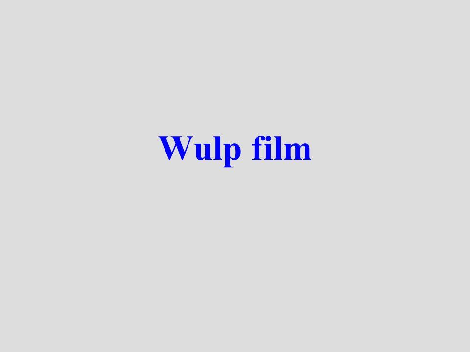 Wulp film
