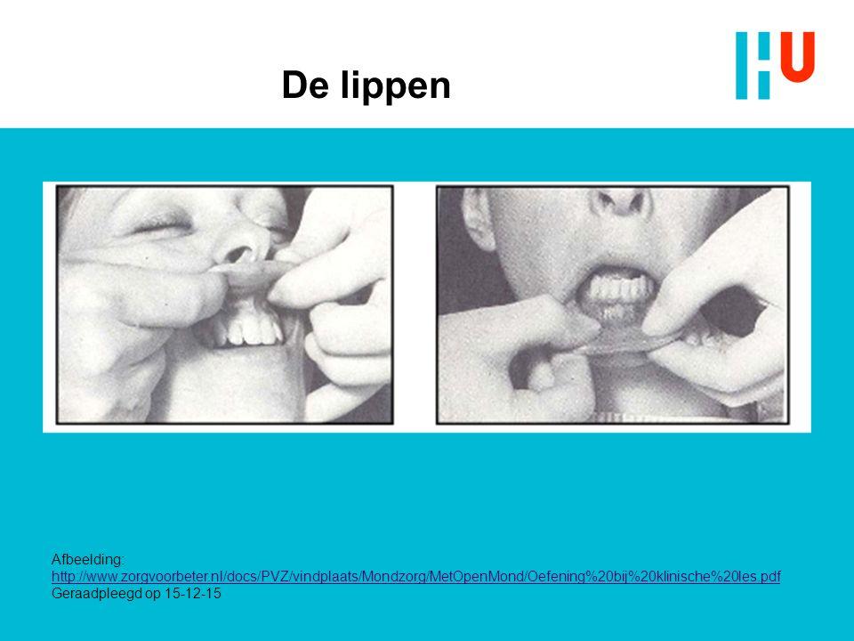 De lippen Afbeelding: http://www.zorgvoorbeter.nl/docs/PVZ/vindplaats/Mondzorg/MetOpenMond/Oefening%20bij%20klinische%20les.pdf Geraadpleegd op 15-12-