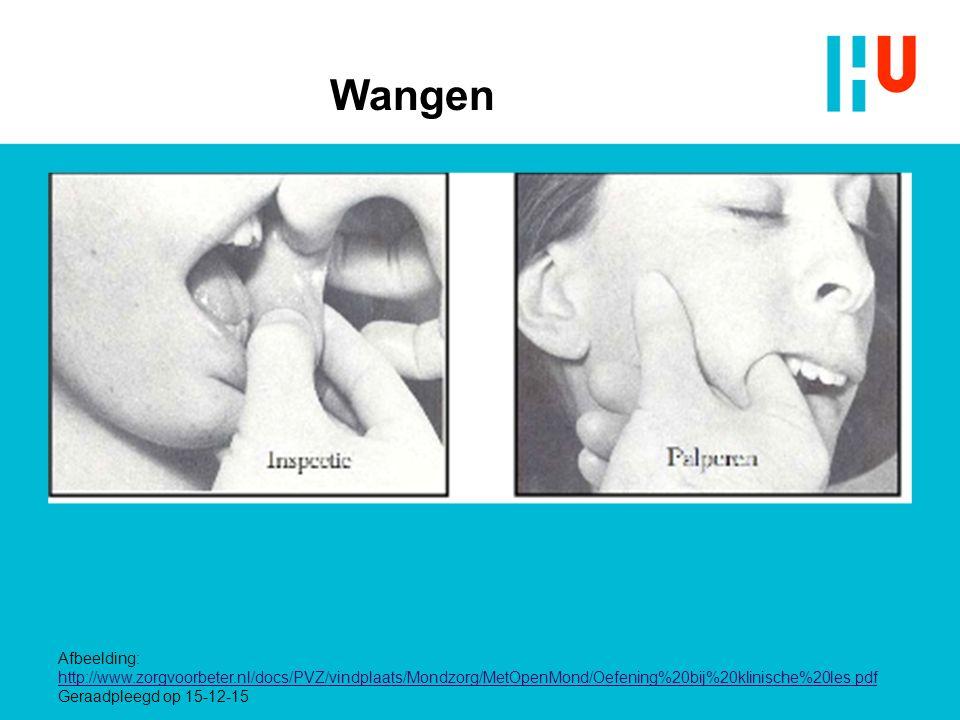 Wangen Afbeelding: http://www.zorgvoorbeter.nl/docs/PVZ/vindplaats/Mondzorg/MetOpenMond/Oefening%20bij%20klinische%20les.pdf Geraadpleegd op 15-12-15
