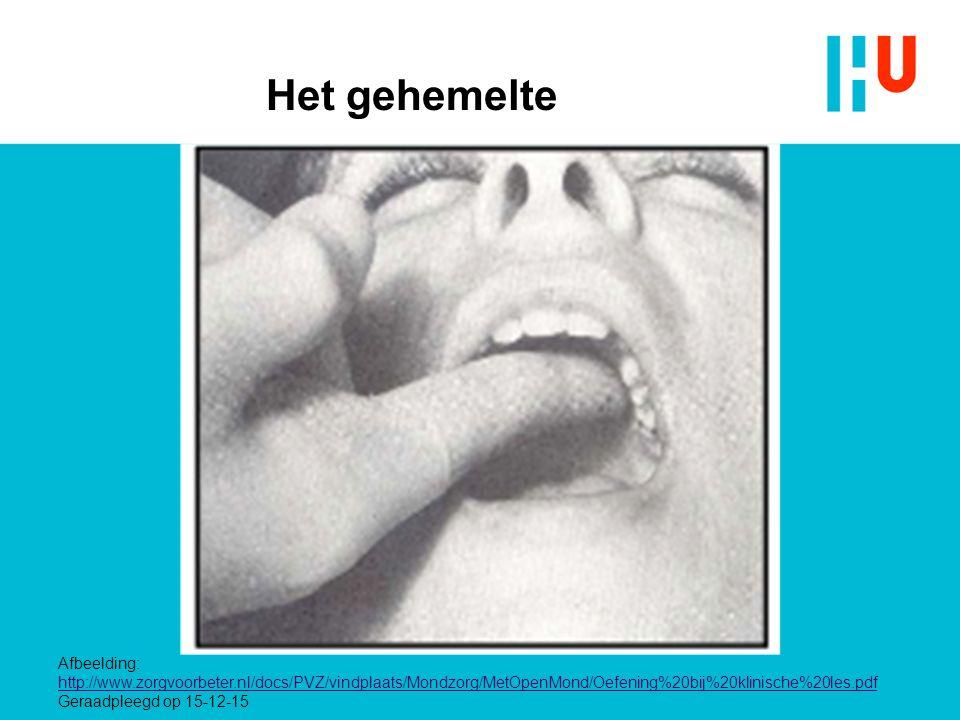 Het gehemelte Afbeelding: http://www.zorgvoorbeter.nl/docs/PVZ/vindplaats/Mondzorg/MetOpenMond/Oefening%20bij%20klinische%20les.pdf Geraadpleegd op 15