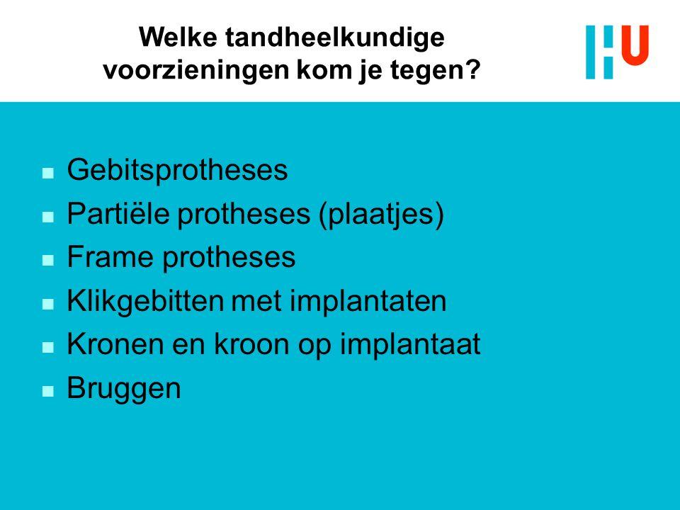 Welke tandheelkundige voorzieningen kom je tegen? n Gebitsprotheses n Partiële protheses (plaatjes) n Frame protheses n Klikgebitten met implantaten n