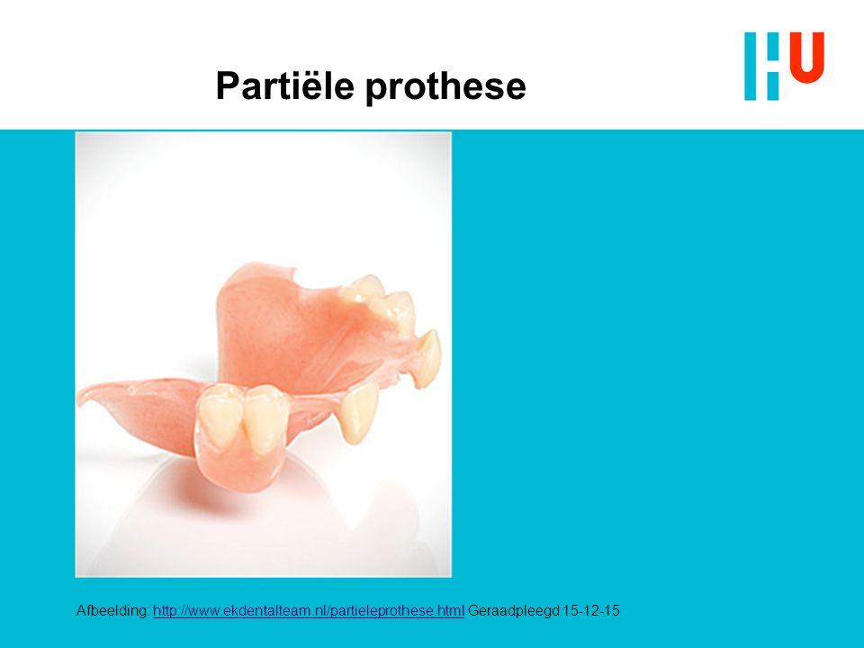 Partiële prothese Afbeelding: http://www.ekdentalteam.nl/partieleprothese.html Geraadpleegd 15-12-15http://www.ekdentalteam.nl/partieleprothese.html