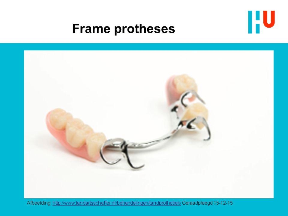Frame protheses Afbeelding: http://www.tandartsschaffer.nl/behandelingen/tandprothetiek/ Geraadpleegd 15-12-15http://www.tandartsschaffer.nl/behandeli