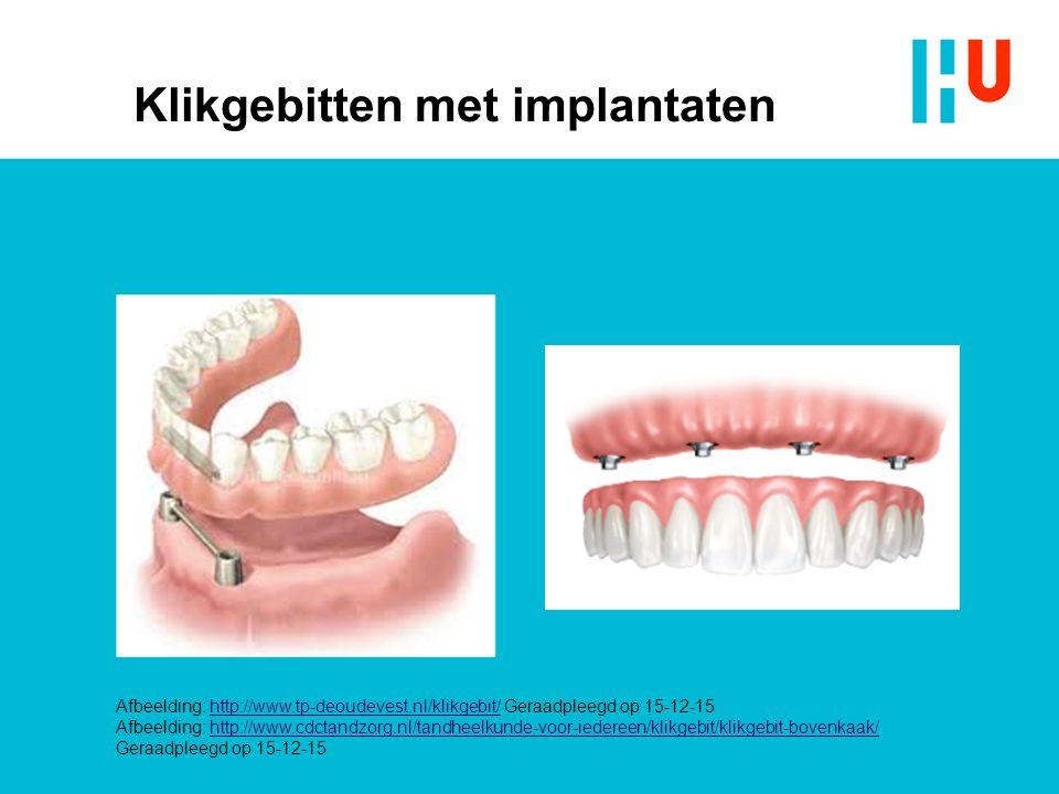 Klikgebitten met implantaten Afbeelding: http://www.tp-deoudevest.nl/klikgebit/ Geraadpleegd op 15-12-15http://www.tp-deoudevest.nl/klikgebit/ Afbeeld