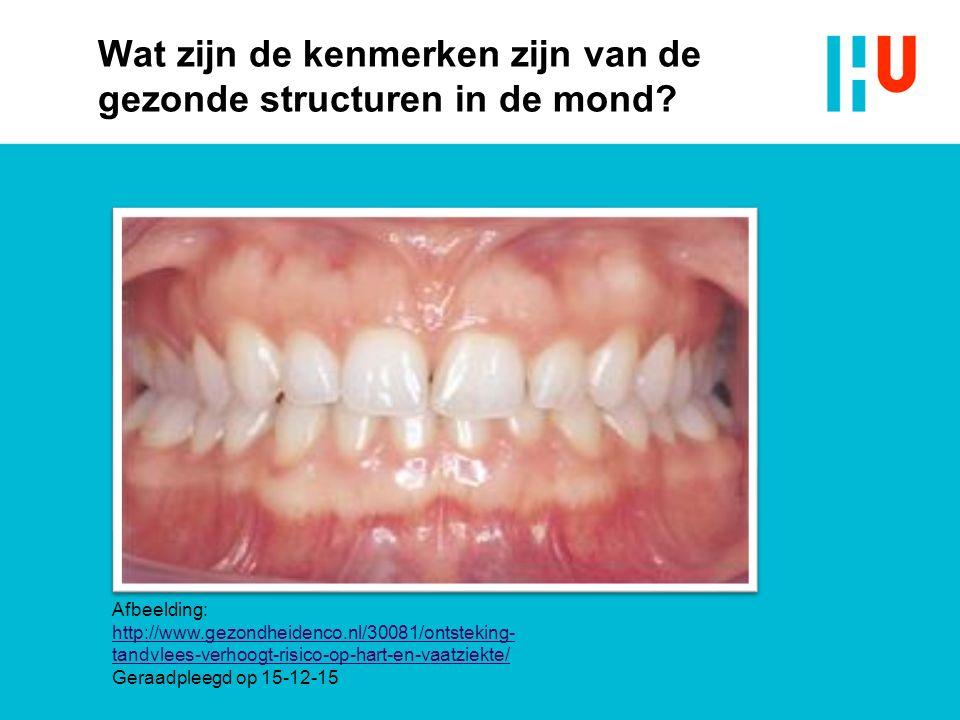 Wat zijn de kenmerken zijn van de gezonde structuren in de mond? Afbeelding: http://www.gezondheidenco.nl/30081/ontsteking- tandvlees-verhoogt-risico-