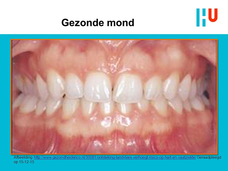 Gezonde mond Afbeelding: http://www.gezondheidenco.nl/30081/ontsteking-tandvlees-verhoogt-risico-op-hart-en-vaatziekte/ Geraadpleegd op 15-12-15http:/