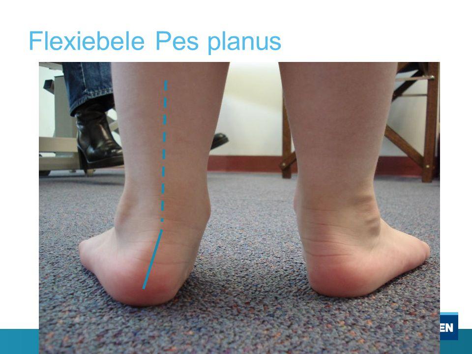 Flexiebele Pes planus