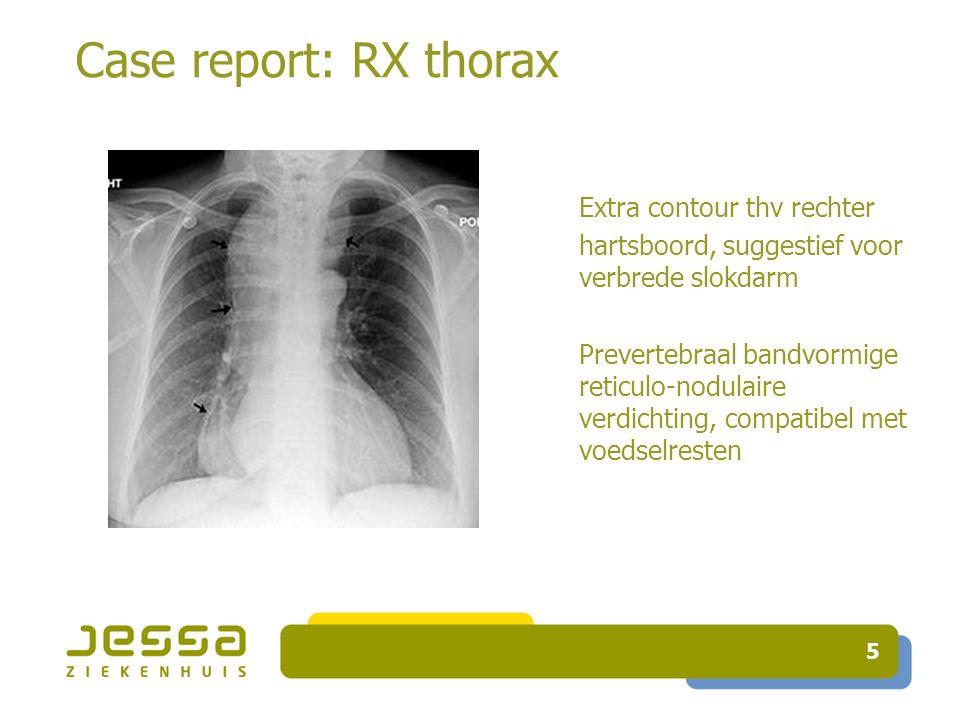 Case report: RX thorax 5 Extra contour thv rechter hartsboord, suggestief voor verbrede slokdarm Prevertebraal bandvormige reticulo-nodulaire verdichting, compatibel met voedselresten