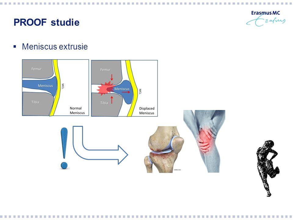 Vraagstelling Hebben fysieke activiteit en gewichtsverlies een effect op meniscus extrusie?