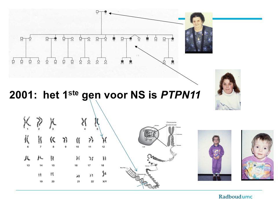 2001: het 1 ste gen voor NS is PTPN11