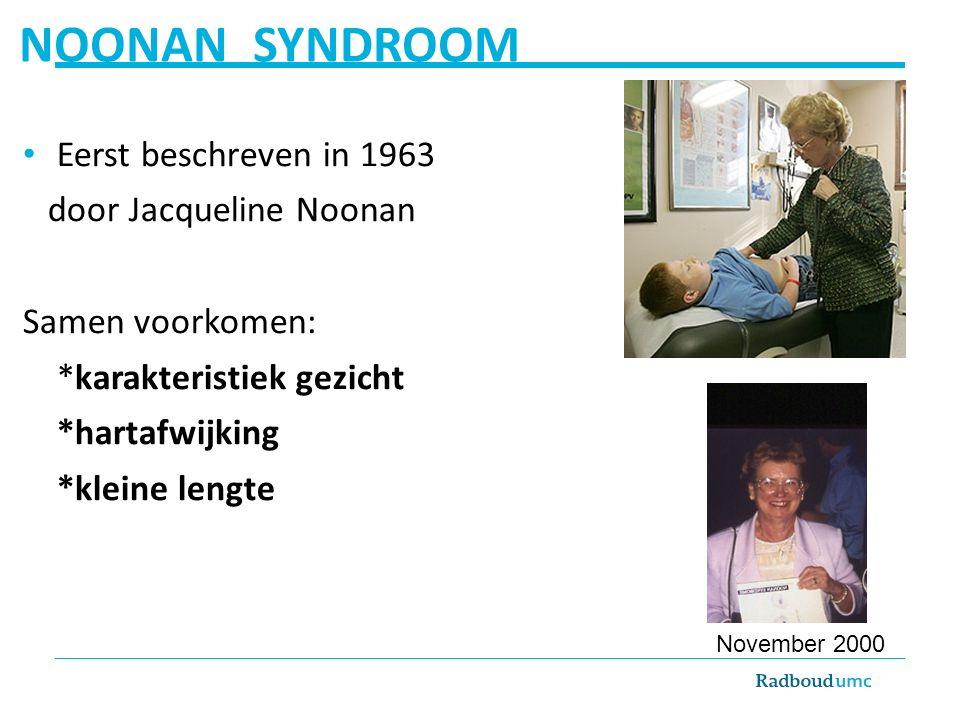 NOONAN SYNDROOM Eerst beschreven in 1963 door Jacqueline Noonan Samen voorkomen: *karakteristiek gezicht *hartafwijking *kleine lengte November 2000
