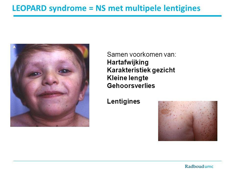 LEOPARD syndrome = NS met multipele lentigines Samen voorkomen van: Hartafwijking Karakteristiek gezicht Kleine lengte Gehoorsverlies Lentigines