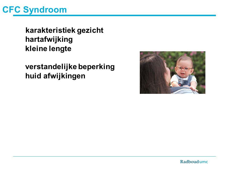 CFC Syndroom karakteristiek gezicht hartafwijking kleine lengte verstandelijke beperking huid afwijkingen