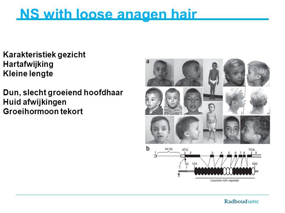 Karakteristiek gezicht Hartafwijking Kleine lengte Dun, slecht groeiend hoofdhaar Huid afwijkingen Groeihormoon tekort NS with loose anagen hair