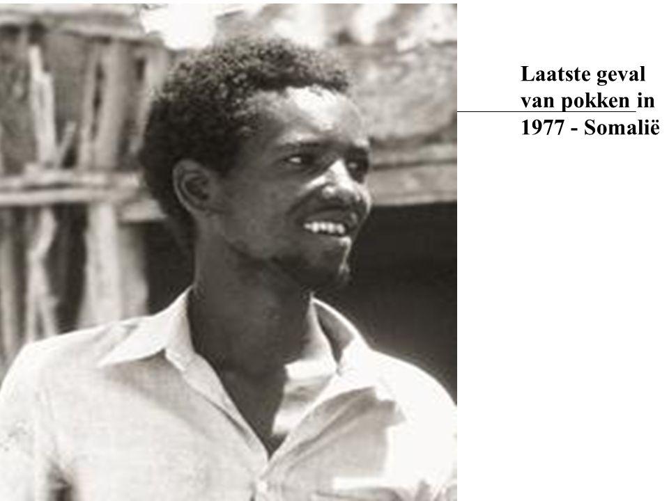 Laatste geval van pokken in 1977 - Somalië