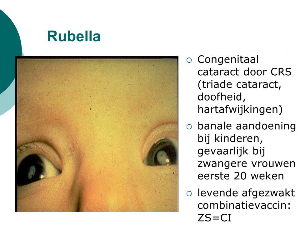 Rubella  Congenitaal cataract door CRS (triade cataract, doofheid, hartafwijkingen)  banale aandoening bij kinderen, gevaarlijk bij zwangere vrouwen eerste 20 weken  levende afgezwakt combinatievaccin: ZS=CI