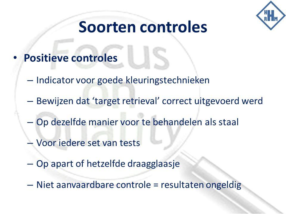 Soorten controles Positieve controles – Indicator voor goede kleuringstechnieken – Bewijzen dat 'target retrieval' correct uitgevoerd werd – Op dezelfde manier voor te behandelen als staal – Voor iedere set van tests – Op apart of hetzelfde draagglaasje – Niet aanvaardbare controle = resultaten ongeldig