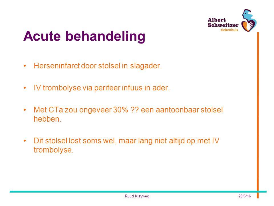 Acute behandeling Herseninfarct door stolsel in slagader.