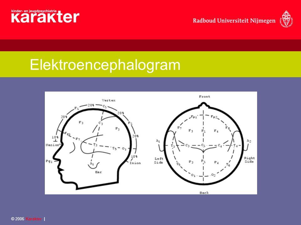 Onderzoeksproject-metingen scales/vragenlijsten/interview Klinisch testbatterij 4 domeinen Neurocognitief MRI, fMRI en EEG Neuronaal © 2006 Karakter  