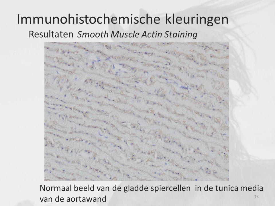 Normaal beeld van de gladde spiercellen in de tunica media van de aortawand Immunohistochemische kleuringen Resultaten Smooth Muscle Actin Staining 13