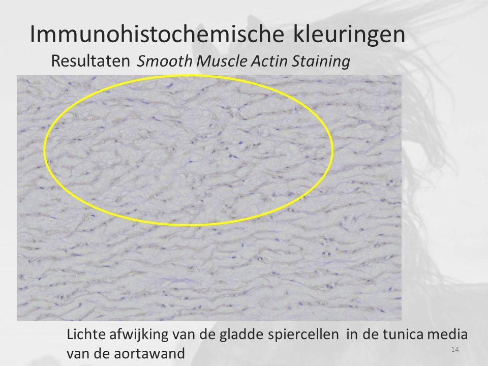 Lichte afwijking van de gladde spiercellen in de tunica media van de aortawand Immunohistochemische kleuringen Resultaten Smooth Muscle Actin Staining 14