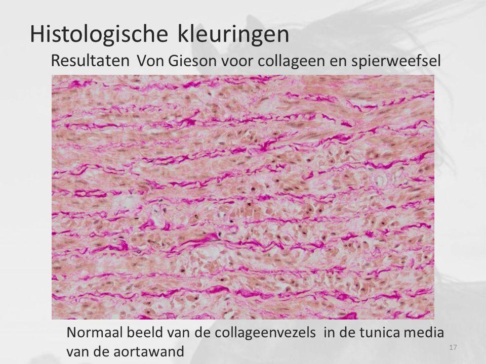 Histologische kleuringen Resultaten Von Gieson voor collageen en spierweefsel Normaal beeld van de collageenvezels in de tunica media van de aortawand 17