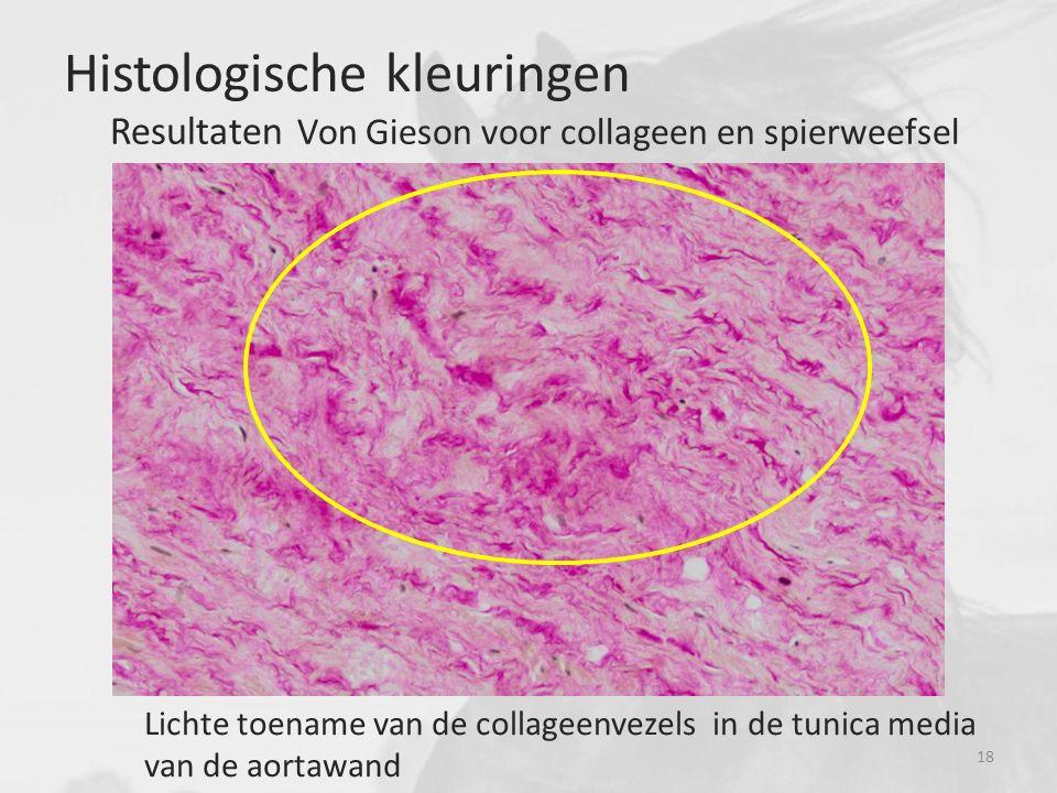 Lichte toename van de collageenvezels in de tunica media van de aortawand Histologische kleuringen Resultaten Von Gieson voor collageen en spierweefsel 18
