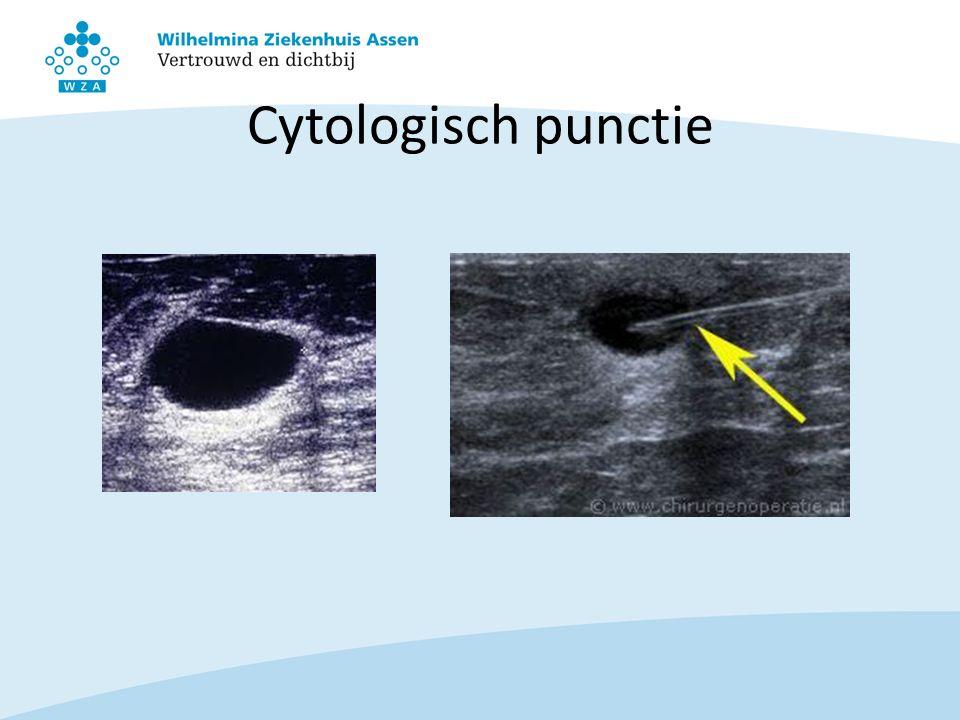 Cytologisch punctie