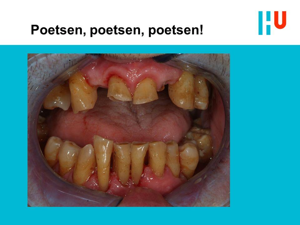 Prothese Stomatitis prothetica Afbeelding: http://www.tandarts.nl/mondzorg/aandoeningen/mondaf wijkingen Geraadpleegd op 23-11-15