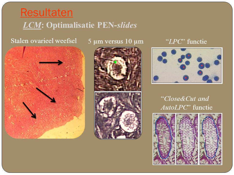 Resultaten LCM: Optimalisatie scheiding granulosacellen en eicel Close&Cut and AutoLPC LPC' en Close&Cut and AutoLPC