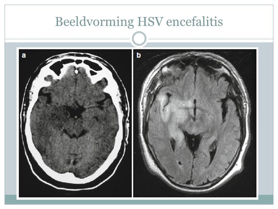 Beeldvorming HSV encefalitis