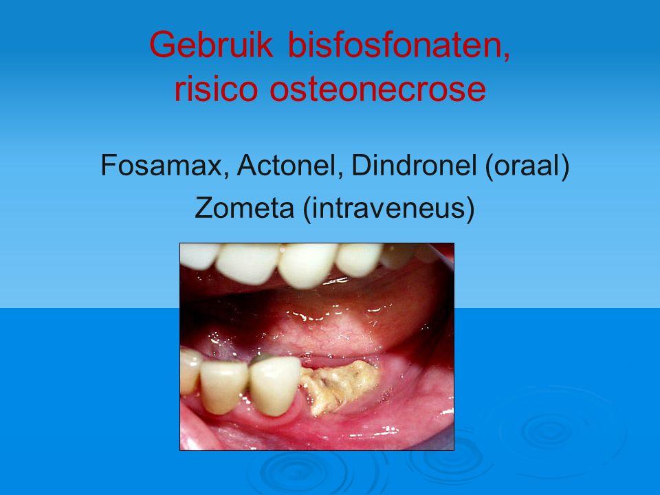 Gebruik bisfosfonaten, risico osteonecrose Fosamax, Actonel, Dindronel (oraal) Zometa (intraveneus)